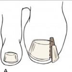 ingegroeideteennagelchirurgie