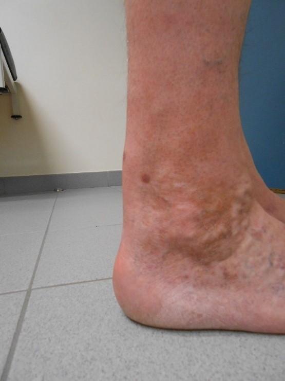 Achillespees En Hielproblemen Orthopedisch Centrum Kortrijk Az