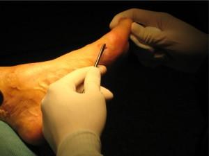 percutane ingreep voet3
