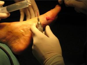 percutane ingreep voet4