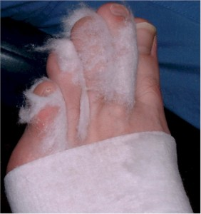 totaalcontactgips1